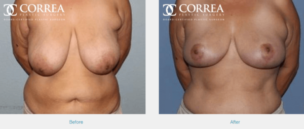 Breast-Reduction_blog-web Houston